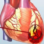 Der Herzinfarkt (Myokardinfarkt)