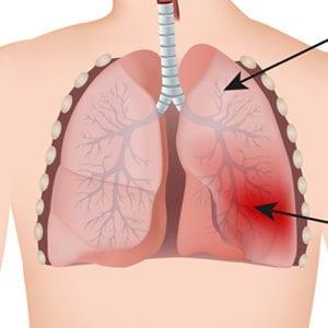 Lunge und Pneumonie